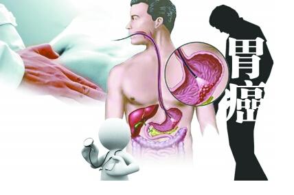 治疗胃癌我们将如何提高效果呢