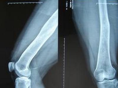 无故膝盖疼应当心患上骨肉瘤