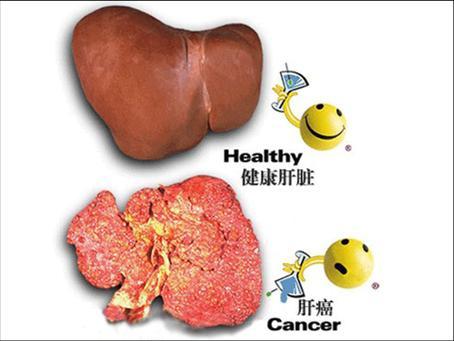 肝癌晚期有哪些治疗方式?