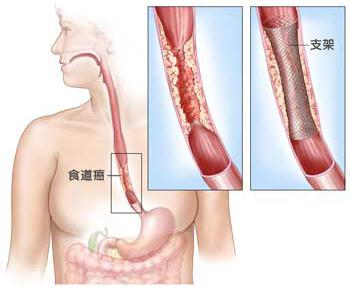 食道癌患者如何饮食疗养?