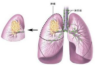 肺癌术后应该怎么吃?