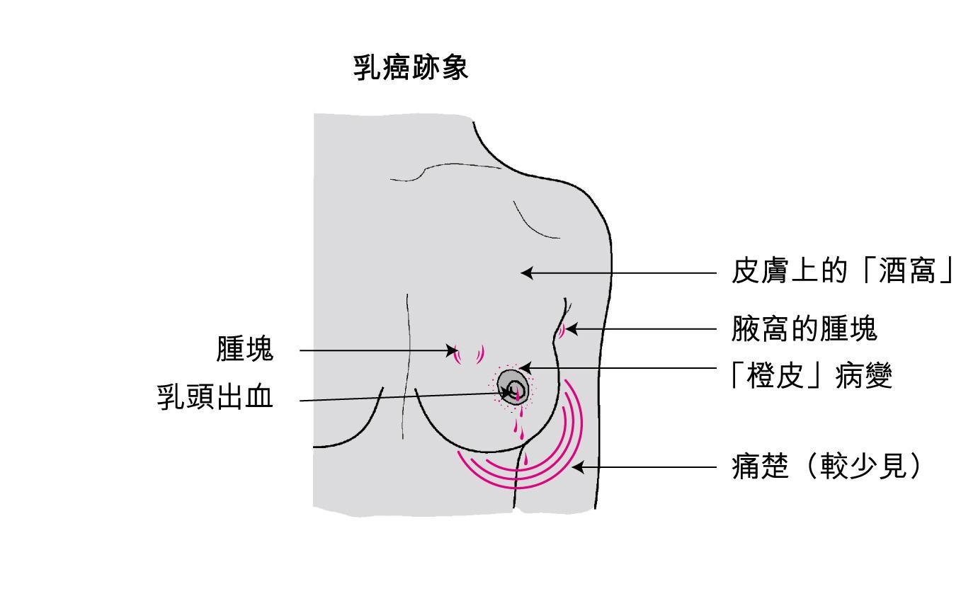 乳腺癌有哪些饮食疗法?