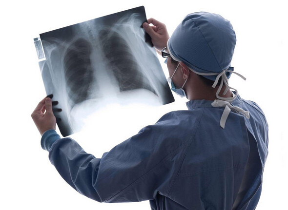 为什么会得肺癌?肺癌形成的原因是什么?