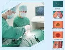 射频消融术