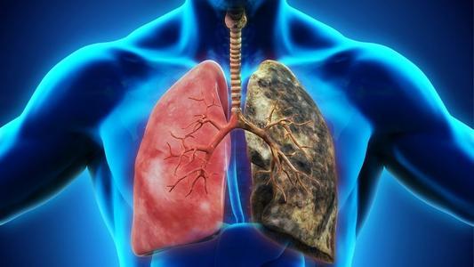 """周围型肺癌不用怕,粒子虽小,却能""""碘""""亮生命"""