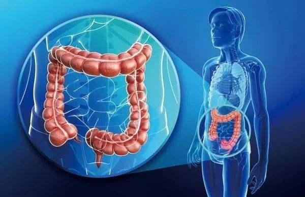 结直肠癌成为我国新高发癌症,速锐刀或能解肠癌之忧愁