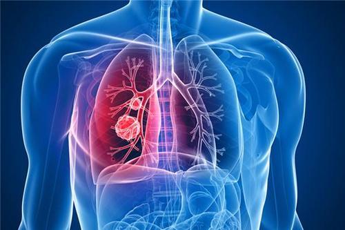新冠肺炎会引起肺癌吗?它们俩哪个更可怕?