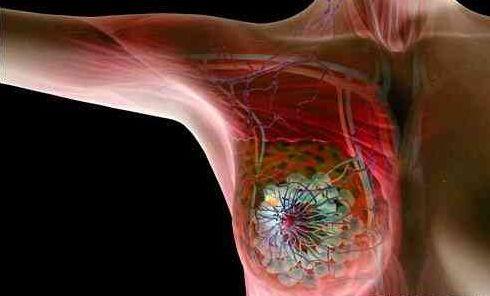 乳腺癌来临很可怕?康博刀让患者不再花容失色!